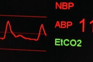 arterielle Blutdruckkurve