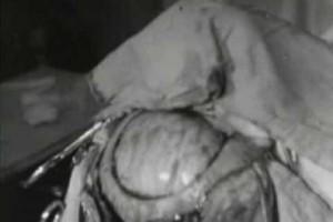Historische Operationsvideos aus den 1930ern